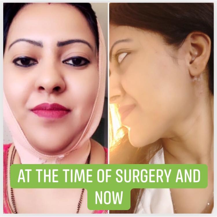 Before and After surgery images of Mrs.Tanisha Roy